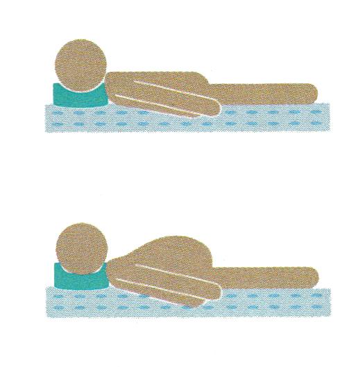 Osteochondrosis senza dolori gravi
